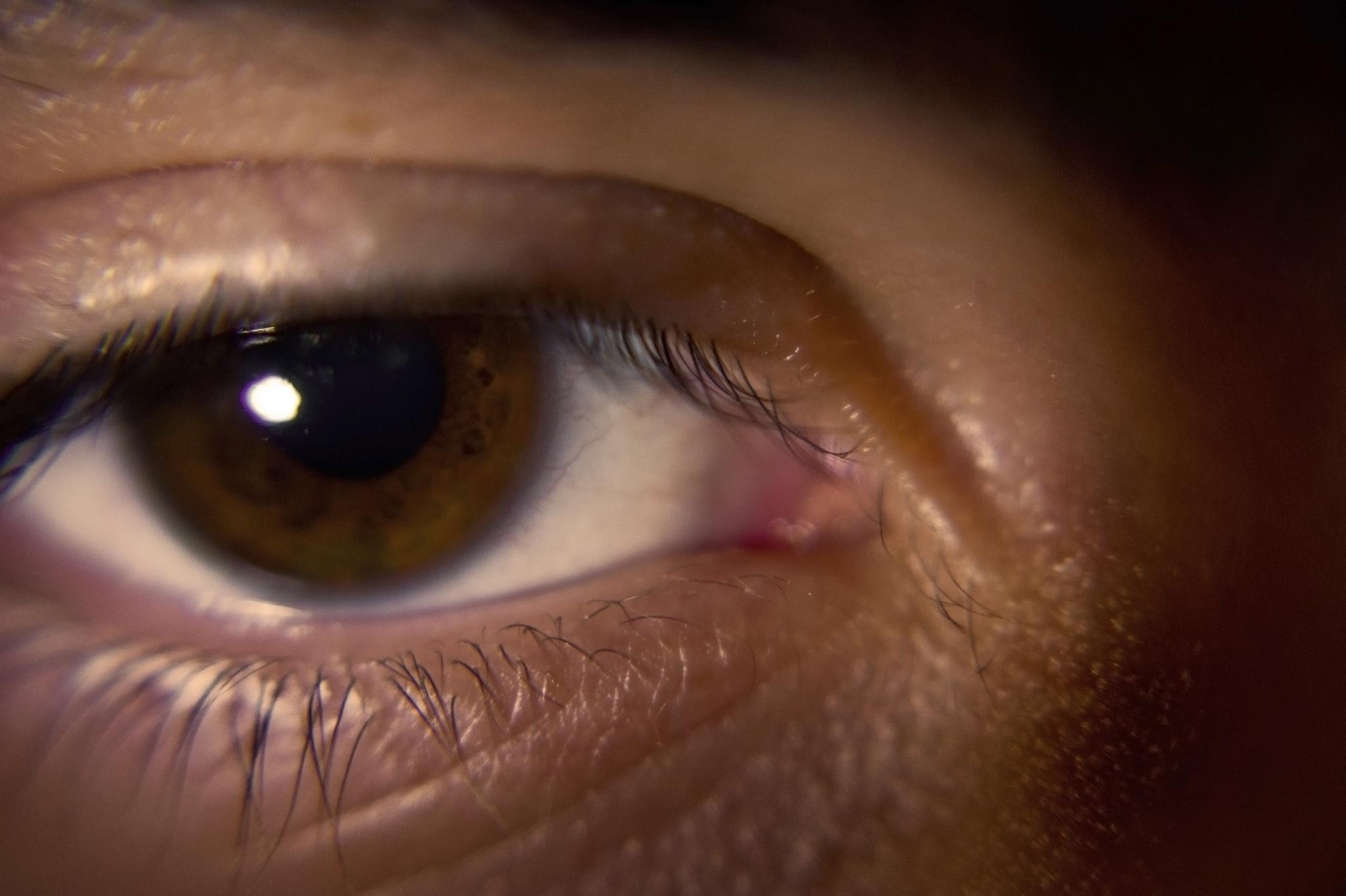 The Human Eye by Austin Devine
