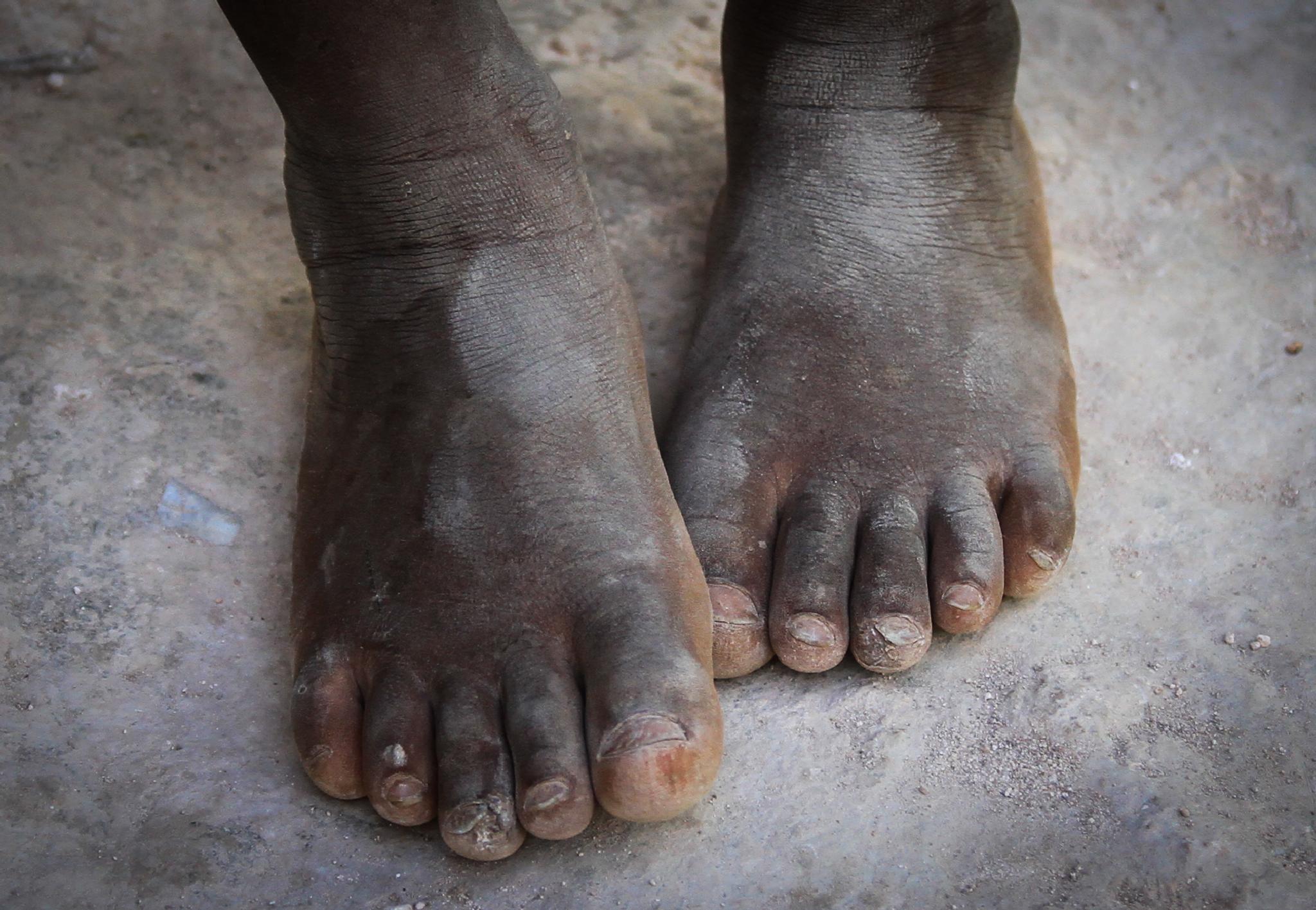 Haitian Feet by phil.niekerk