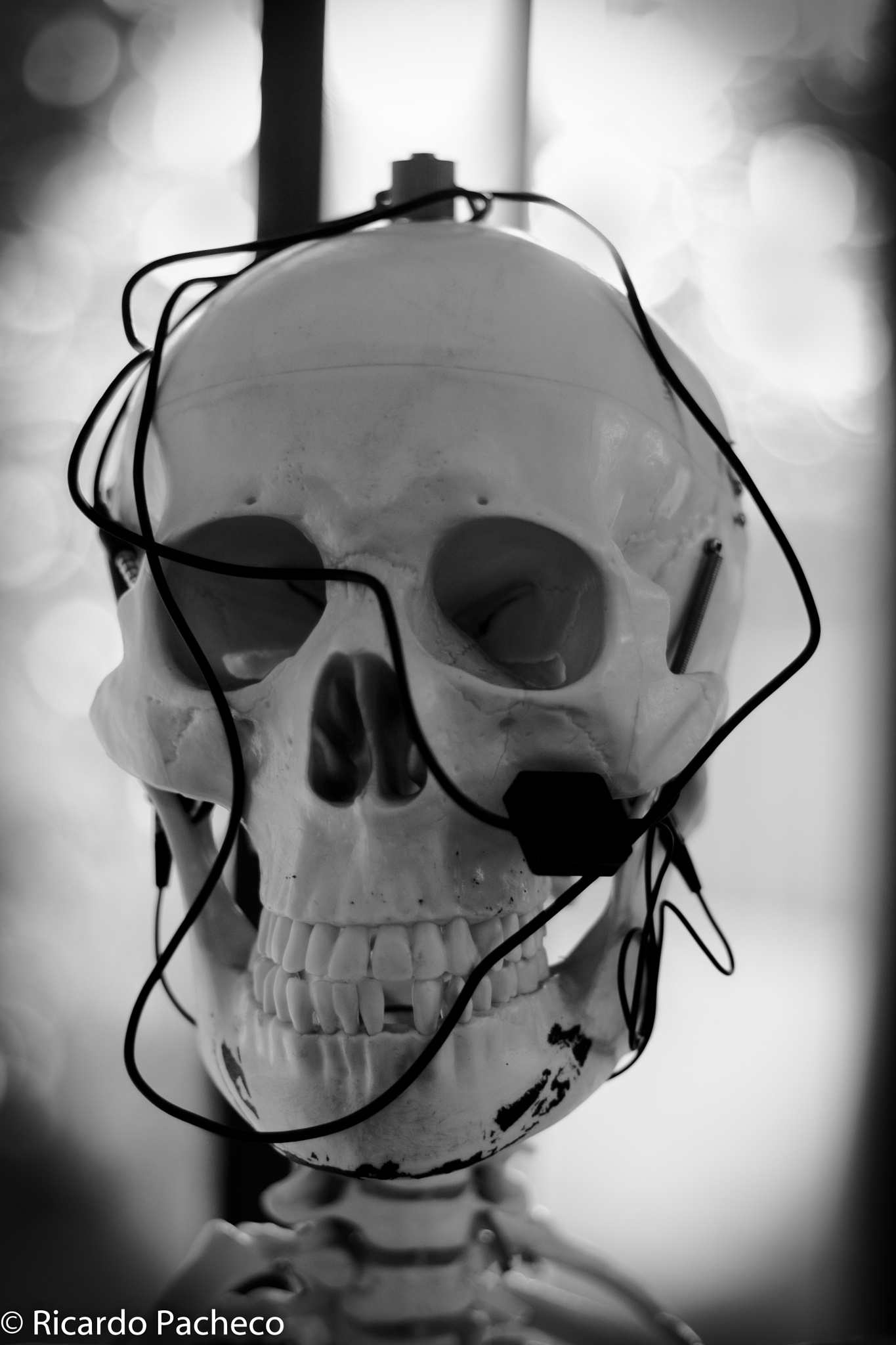 I broken bones by Ricardo Pacheco