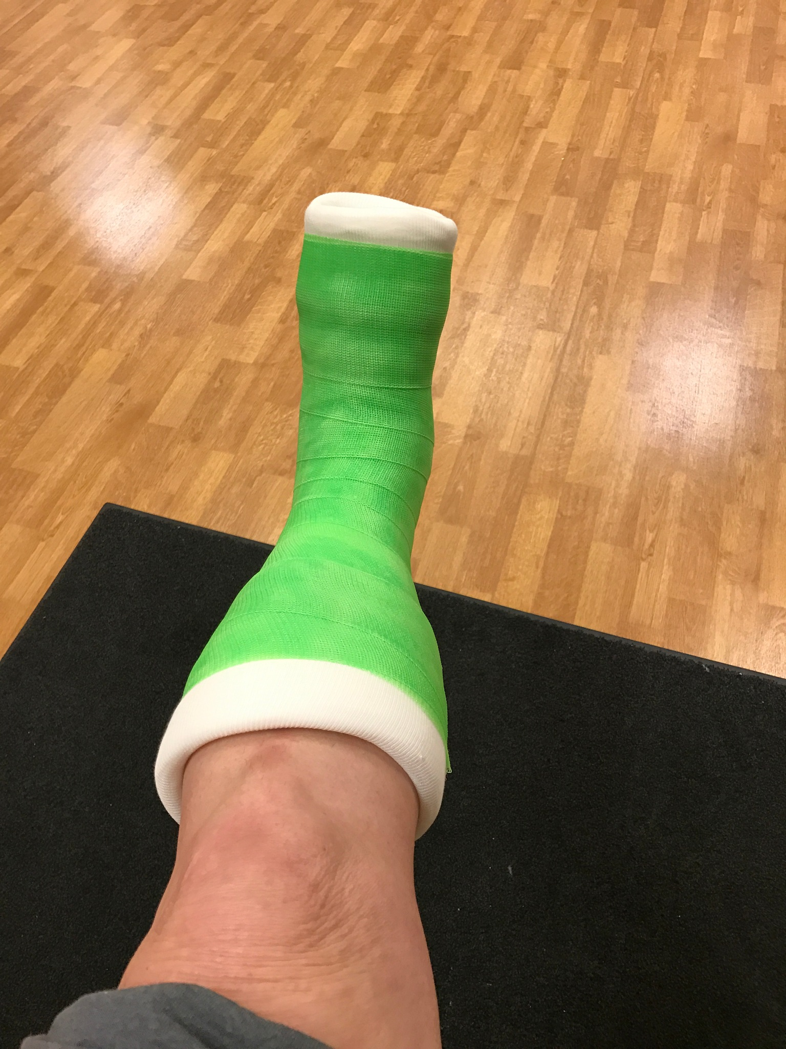My beautiful lime green cast by Marilyn S. Martin