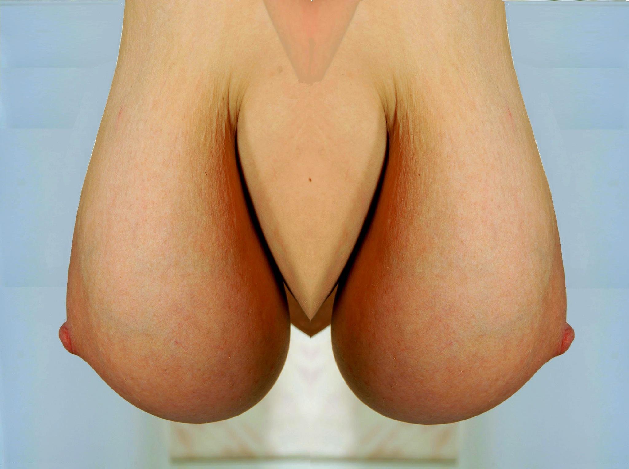 strange breasts by alan p jones