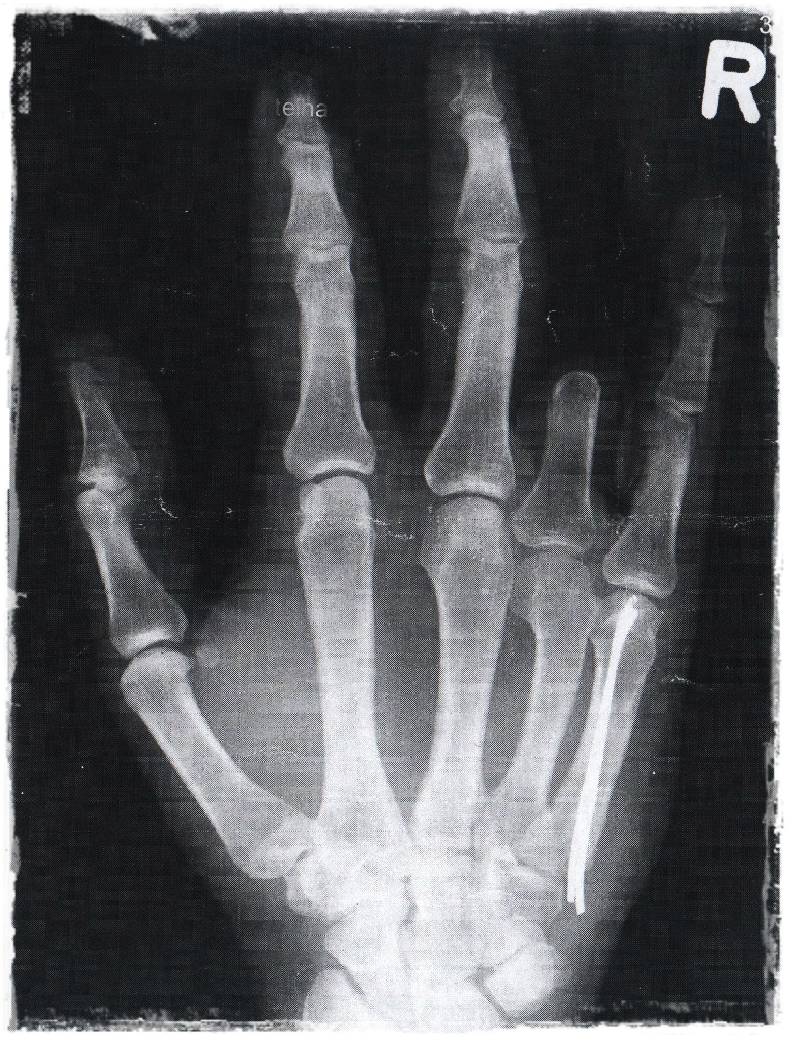 X-ray from my Hand by Jeans Brown Photography / Jens Schwarz