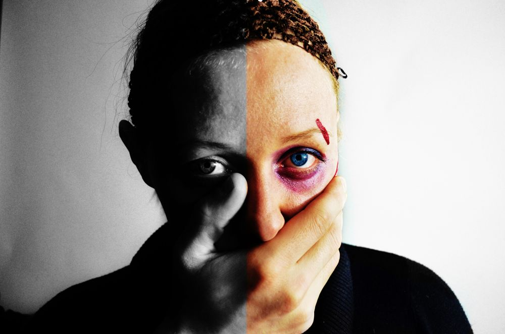Photo in People #domestic violence #sad #relationship #scared #black eye #woman #black and white #headshot