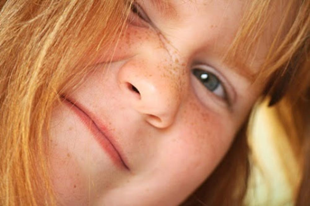 freckles by Sandy Beasley Seymore